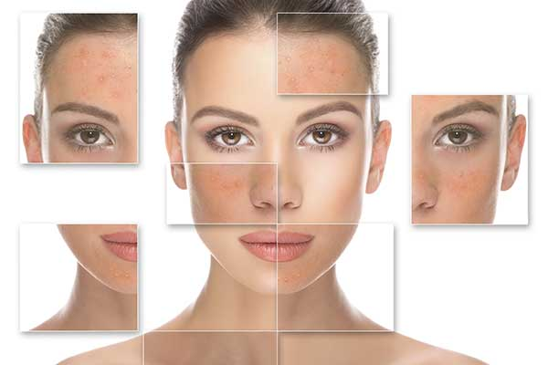 Laser Pigmentation Removal | West London