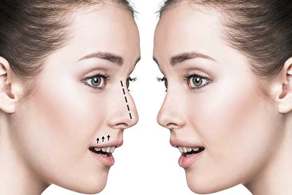 Nose Reshaping | West London